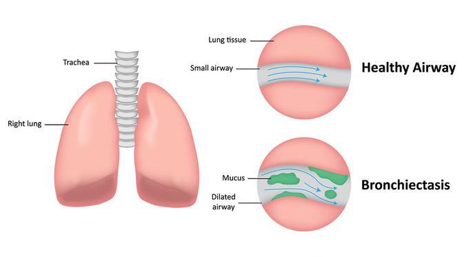 Суха кашлица - схема на бял дроб, трахея, чисти и замърсени дихателни пътища.