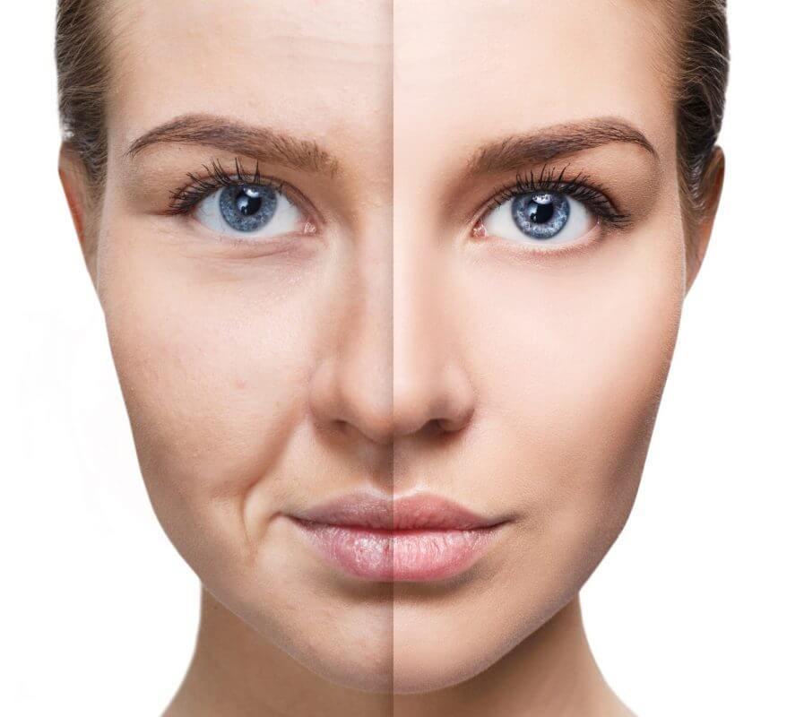 Домашни маски за лице са един от начините да забавим стареенето на кожата.