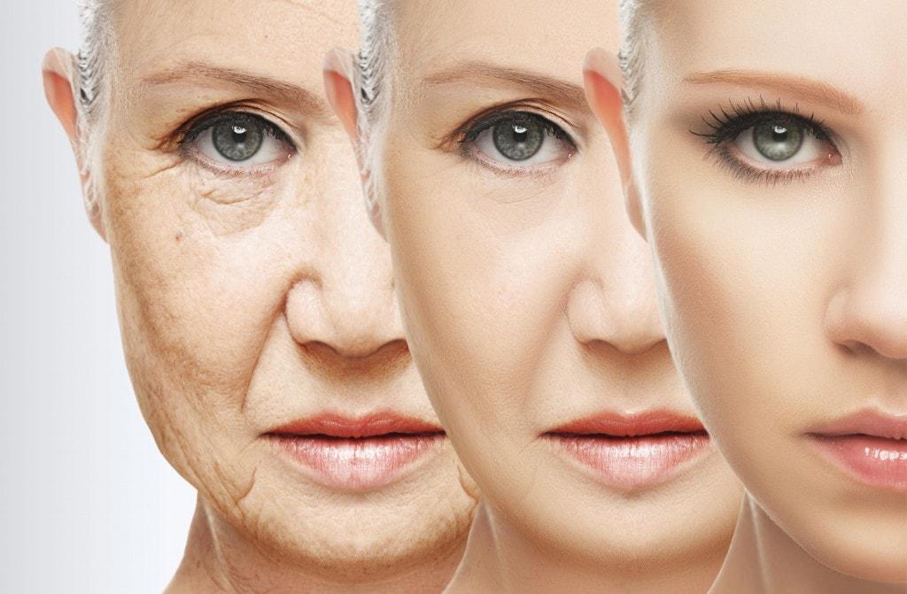 Процеса на стареене на кожата и появата на бръчки.